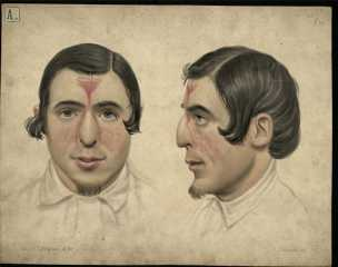 This medical illustration shows a man who has had his nose reconstructed by the 'Indian Method' (UCDA P263/226 r)